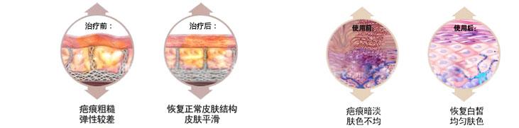 疤痕简谱中国曲谱网